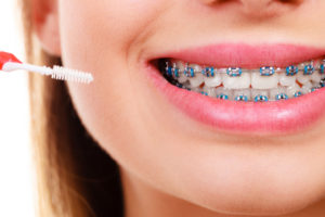 cleaning braces in nashua